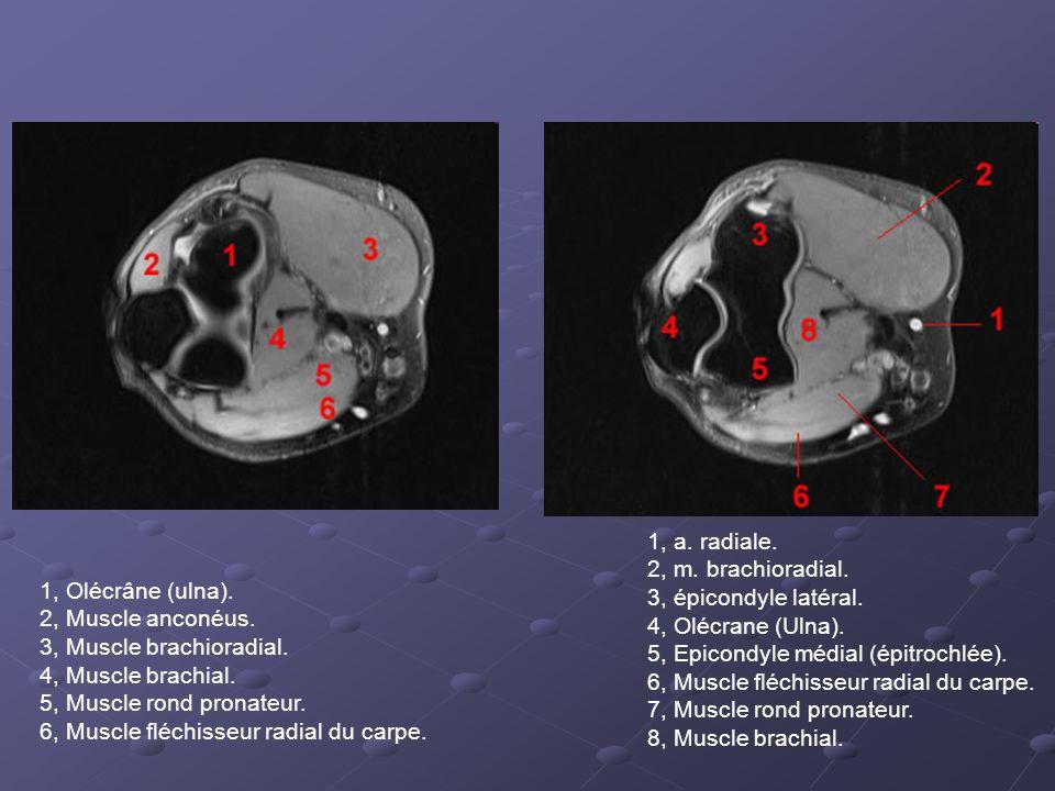1, Olécrâne (ulna).2, Muscle anconéus. 3, Muscle brachioradial.