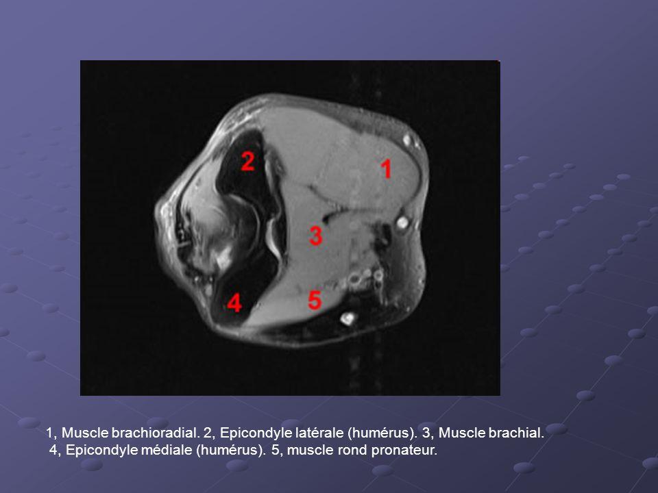 1, Muscle brachioradial.2, Epicondyle latérale (humérus).