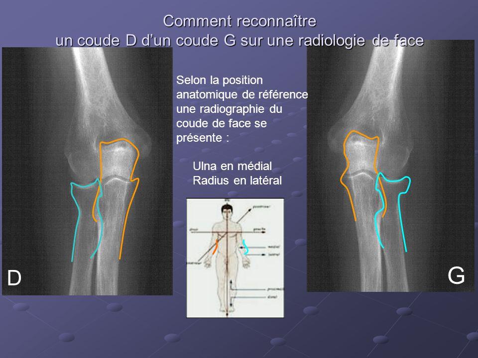 Comment reconnaître un coude D dun coude G sur une radiologie de face D Selon la position anatomique de référence une radiographie du coude de face se présente : Ulna en médial Radius en latéral G