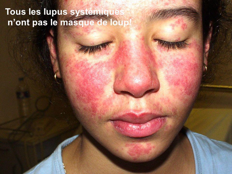 Tous les lupus systémiques nont pas le masque de loup!