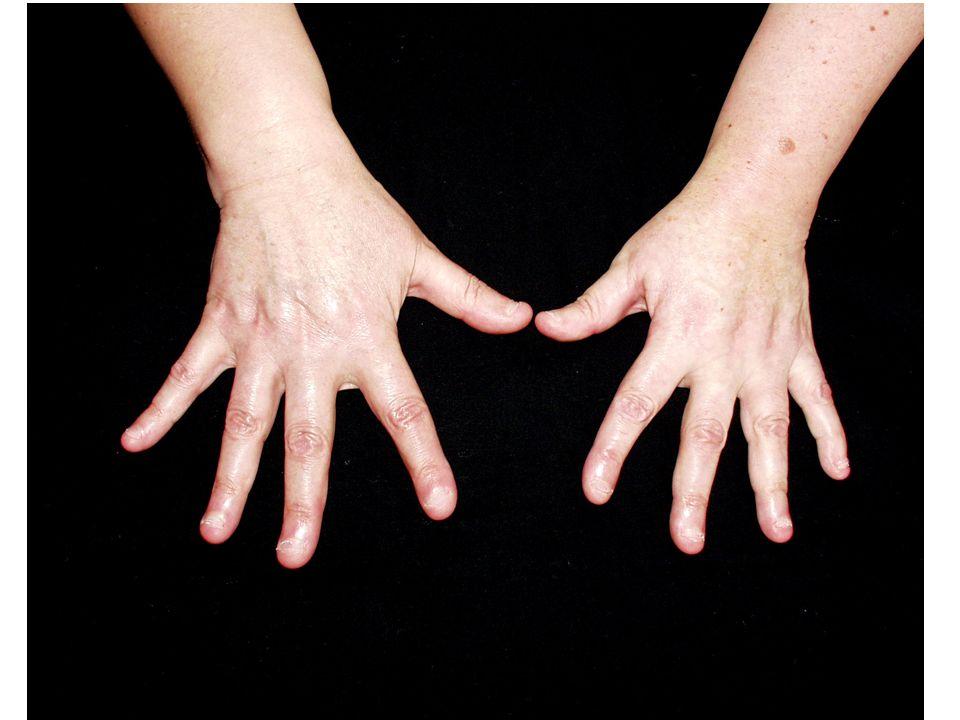 Question 6 Vous voyez la patiente après 3 mois de traitement par Plaquenil.