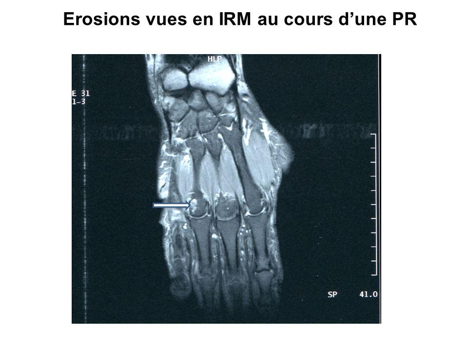 Erosions vues en IRM au cours dune PR