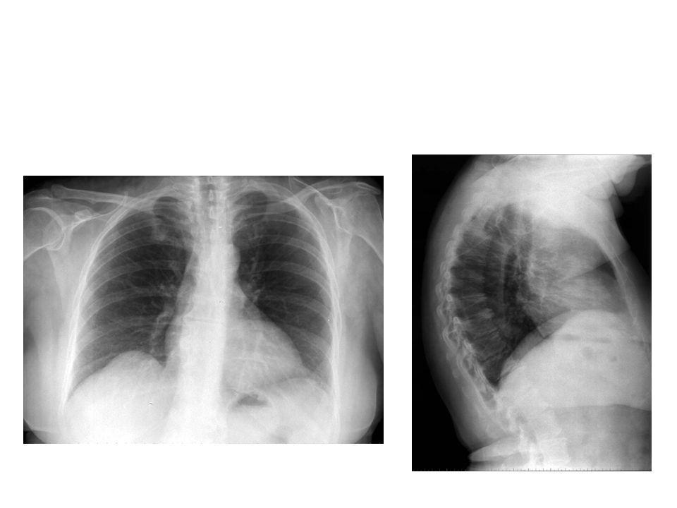 Le facteur rhumatoïde est positif à 132 U (normale < 14, technique immunoturbidimétrique), la sérologie de Lyme est positive en IgG, parvovirus B19nég