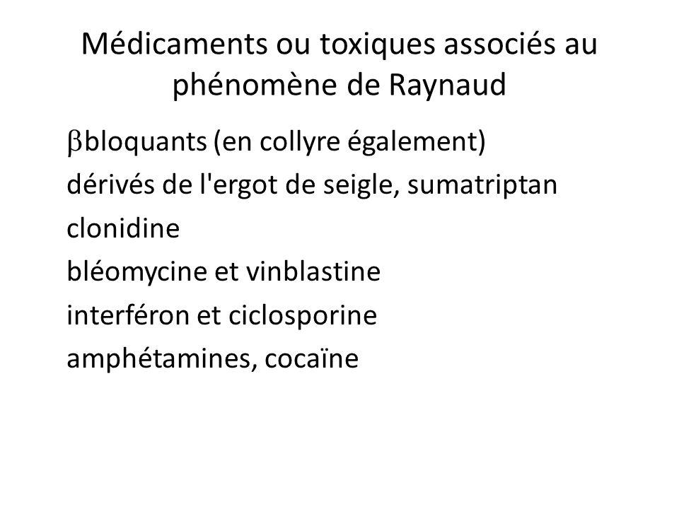 Médicaments ou toxiques associés au phénomène de Raynaud bloquants (en collyre également) dérivés de l ergot de seigle, sumatriptan clonidine bléomycine et vinblastine interféron et ciclosporine amphétamines, cocaïne