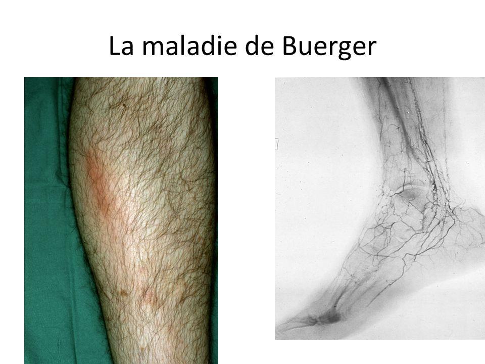La maladie de Buerger