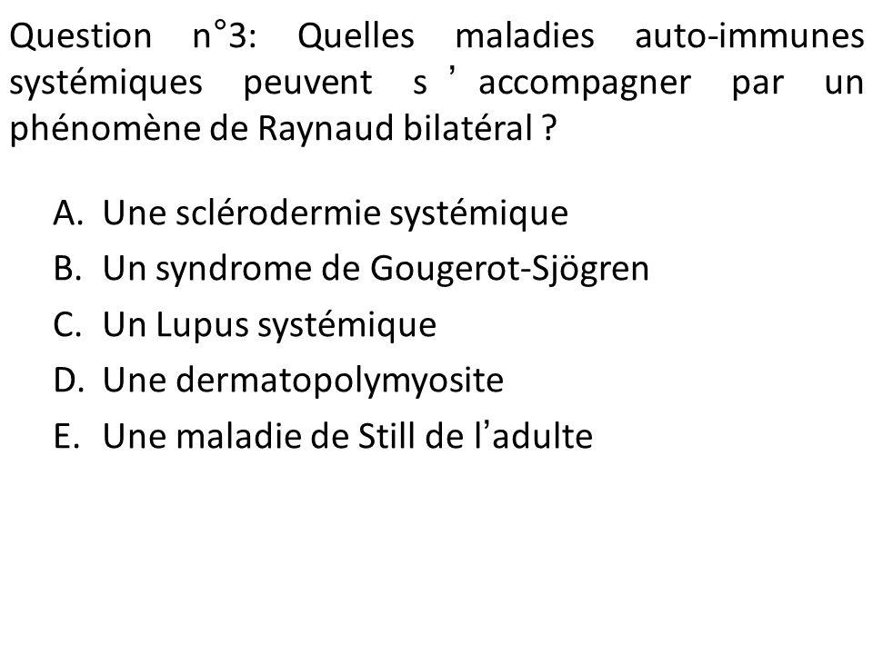 Question n°3: Quelles maladies auto-immunes systémiques peuvent saccompagner par un phénomène de Raynaud bilatéral .