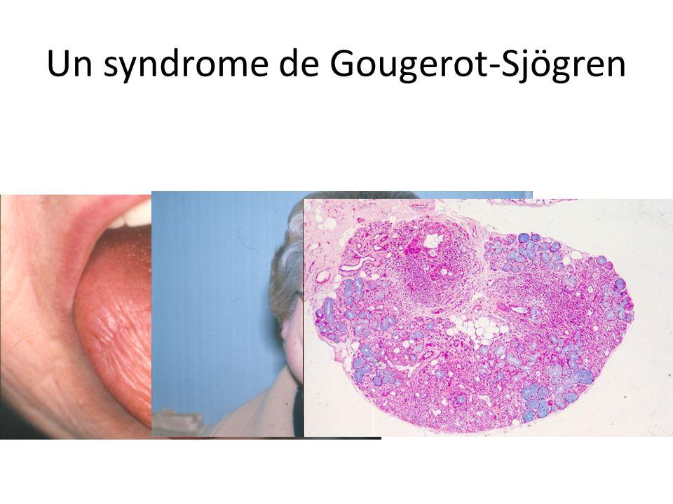 Un syndrome de Gougerot-Sjögren
