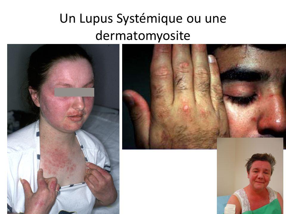 Un Lupus Systémique ou une dermatomyosite