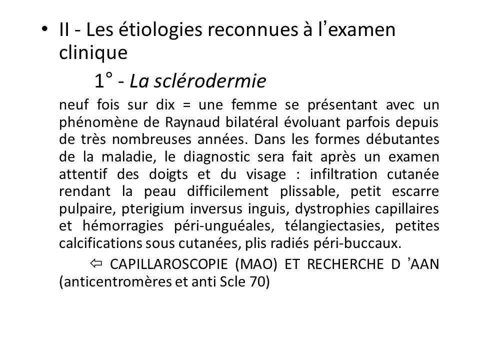 II - Les étiologies reconnues à lexamen clinique 1° - La sclérodermie neuf fois sur dix = une femme se présentant avec un phénomène de Raynaud bilatéral évoluant parfois depuis de très nombreuses années.
