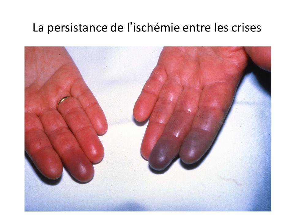 La persistance de lischémie entre les crises