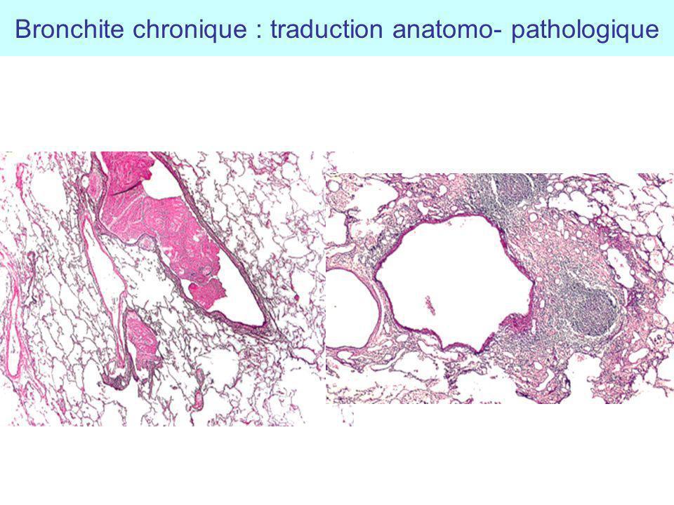 Bronchite chronique : traduction anatomo- pathologique