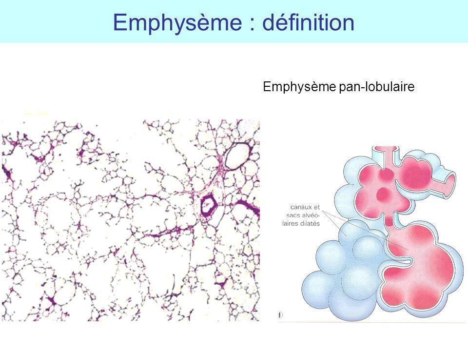 Emphysème : définition Emphysème pan-lobulaire