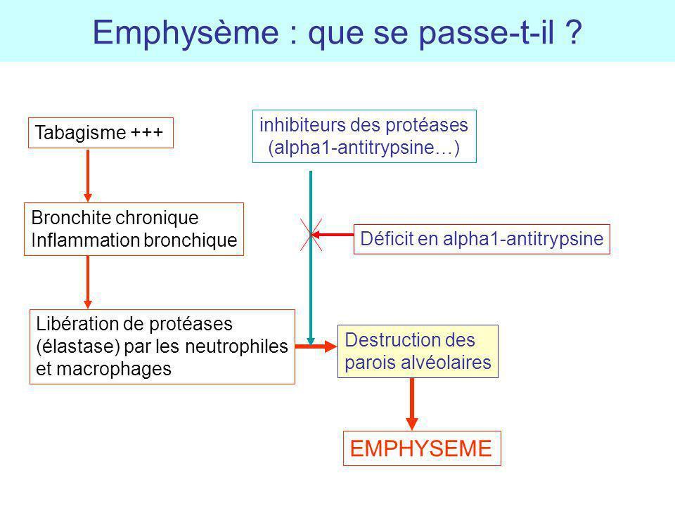 Emphysème : que se passe-t-il ? Tabagisme +++ Bronchite chronique Inflammation bronchique Libération de protéases (élastase) par les neutrophiles et m