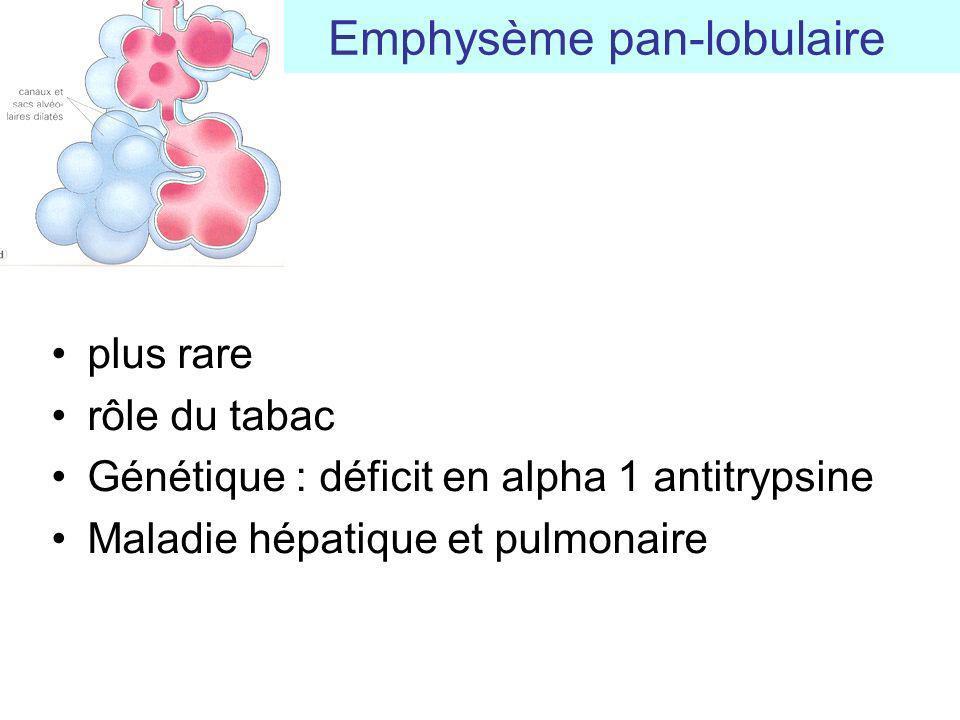 plus rare rôle du tabac Génétique : déficit en alpha 1 antitrypsine Maladie hépatique et pulmonaire Emphysème pan-lobulaire