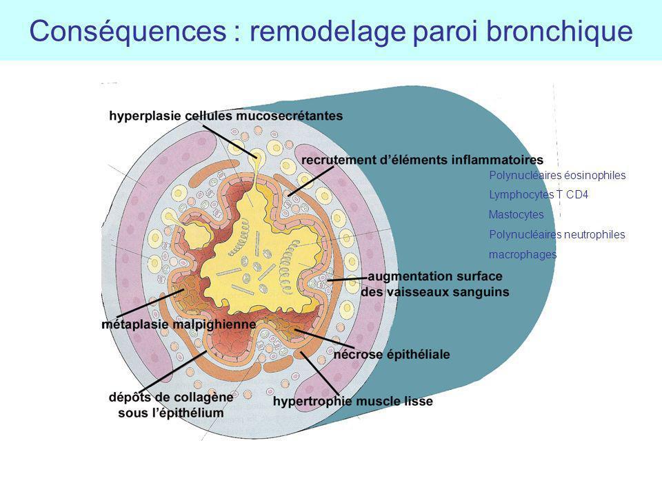 Conséquences : remodelage paroi bronchique Polynucléaires éosinophiles Lymphocytes T CD4 Mastocytes Polynucléaires neutrophiles macrophages