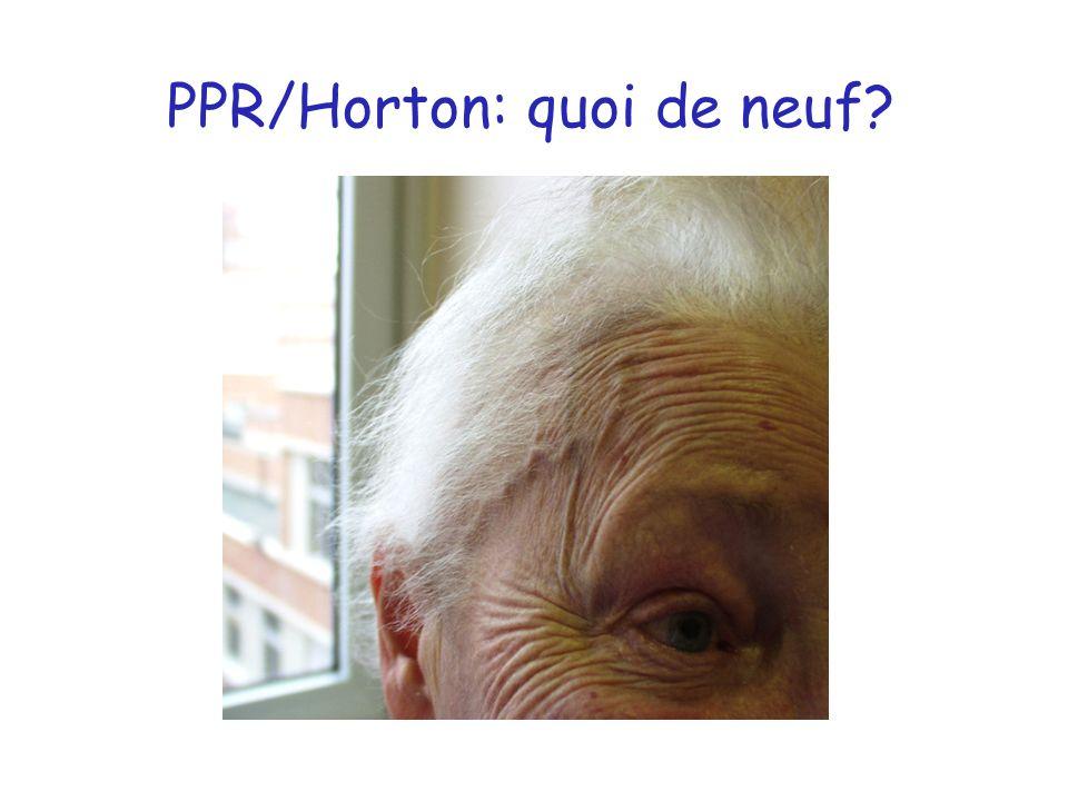 Cas clinique Homme 72 ans présentant des douleurs des épaules + MCP de rythme inflammatoire ATCD nécrose myocardique inférieure il y a 10 ans, AOMI VS = 60 mm/h, CRP = 67mg/L, FR + Un traitement corticoïde est débuté, initialement à la dose de 15 mg/j de prednisone