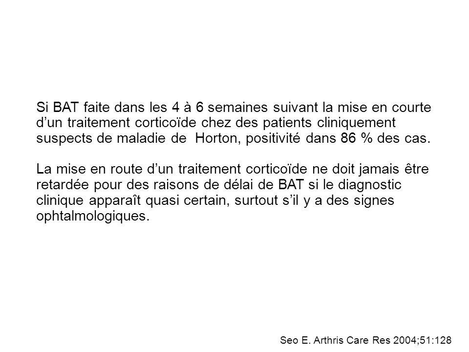 Question 3 : Quels sont les principales complications oculaires de la maladie de Horton.