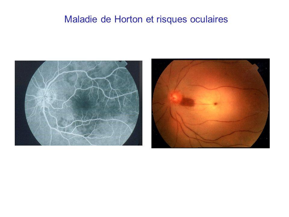 Perte dacuité visuelle dorigine ischémique dans 28 % ces cas, permanente dans 13 % des cas Dans la moitié des cas, latteinte visuelle est bilatérale Facteurs prédictifs : - ATCD damaurose transitoire (OR =6,3 ; IC 95 % = 1,4-29) - Thrombocytose (> 600 000) (OR = 3,7 ; IC 95 % = 1,8-7,9) Liozon E.