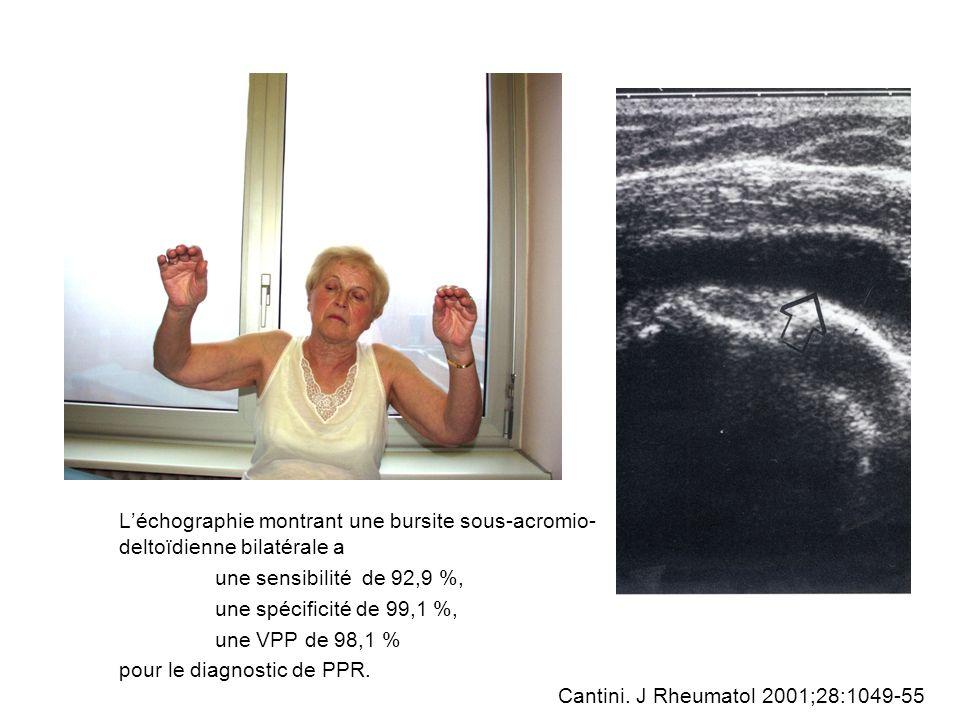 Cas clinique Homme 72 ans PPR ou PR à début rhizomélique + MCP VS = 60 mm/h, CRP = 67mg/L, FR + ATCD nécrose myocardique inférieure il y a 10ans, AOMI Un traitement corticoïde est débuté, initialement à la dose de 15 mg/j de prednisone; Vous êtes appelés par le patient 3 mois plus tard en raison de lapparition de céphalées inhabituelles