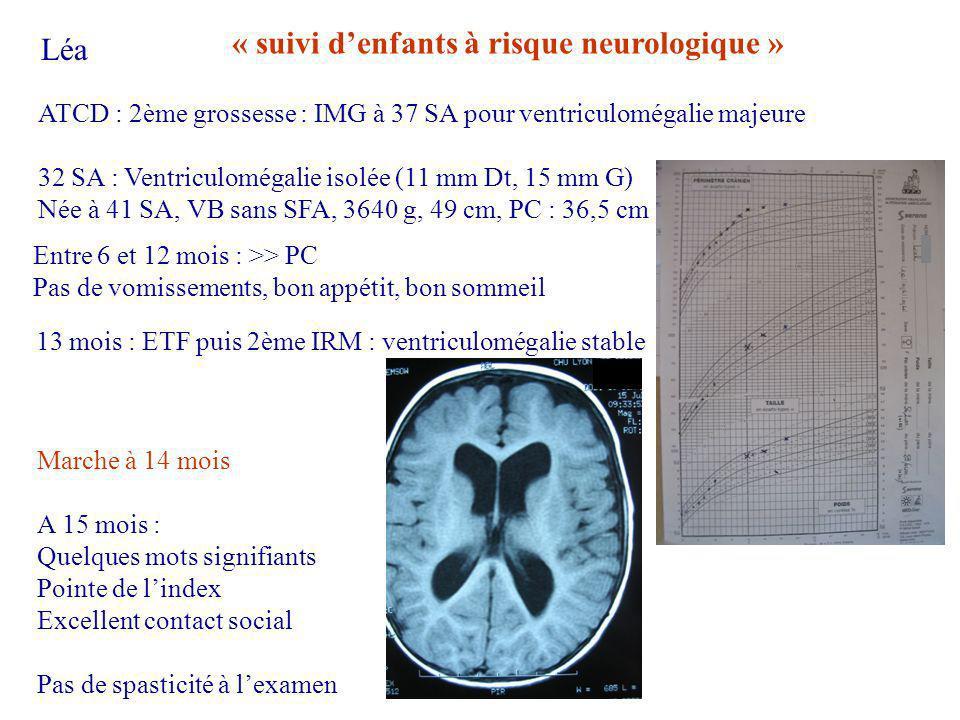 ATCD : 2ème grossesse : IMG à 37 SA pour ventriculomégalie majeure 32 SA : Ventriculomégalie isolée (11 mm Dt, 15 mm G) Née à 41 SA, VB sans SFA, 3640