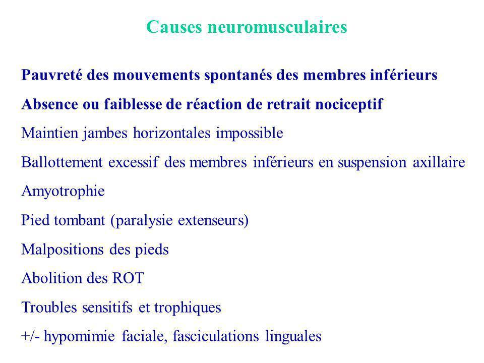 Causes neuromusculaires Pauvreté des mouvements spontanés des membres inférieurs Absence ou faiblesse de réaction de retrait nociceptif Maintien jambe