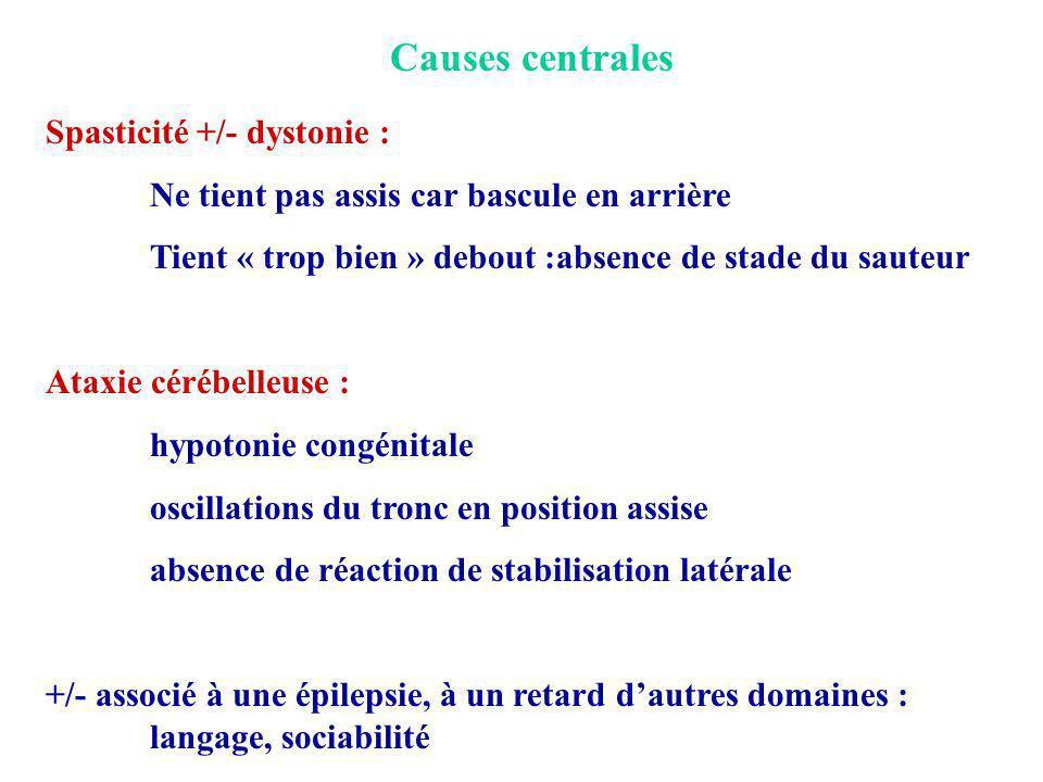 Causes centrales Spasticité +/- dystonie : Ne tient pas assis car bascule en arrière Tient « trop bien » debout :absence de stade du sauteur Ataxie cé