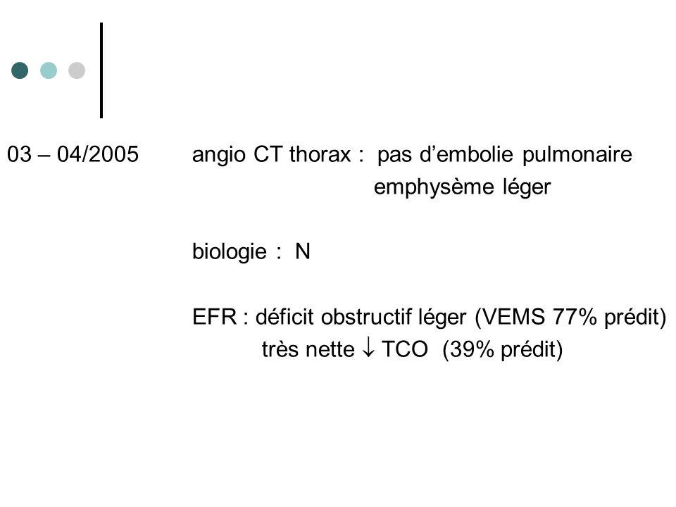 03 – 04/2005 angio CT thorax : pas dembolie pulmonaire emphysème léger biologie : N EFR : déficit obstructif léger (VEMS 77% prédit) très nette TCO (3