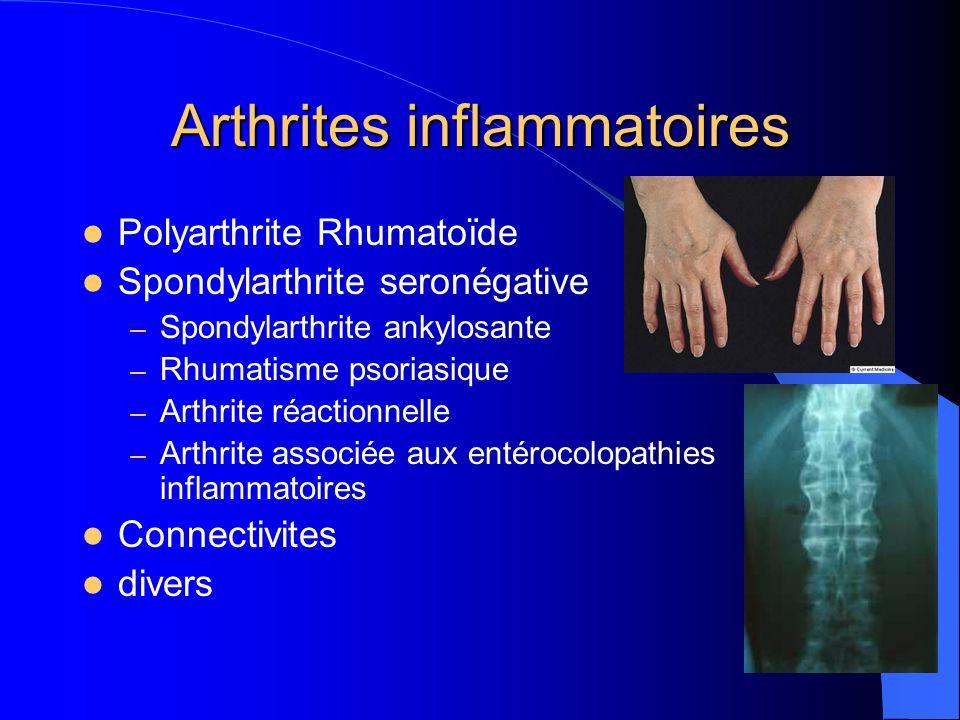 Arthrites inflammatoires Polyarthrite Rhumatoïde Spondylarthrite seronégative – Spondylarthrite ankylosante – Rhumatisme psoriasique – Arthrite réacti