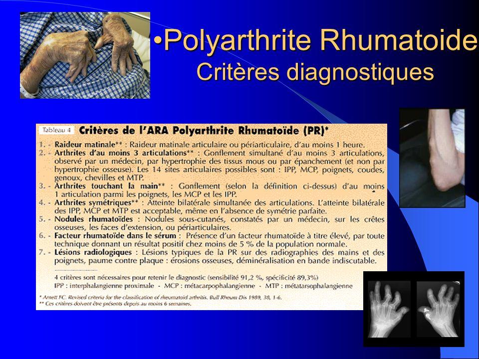 Polyarthrite RhumatoidePolyarthrite Rhumatoide Critères diagnostiques