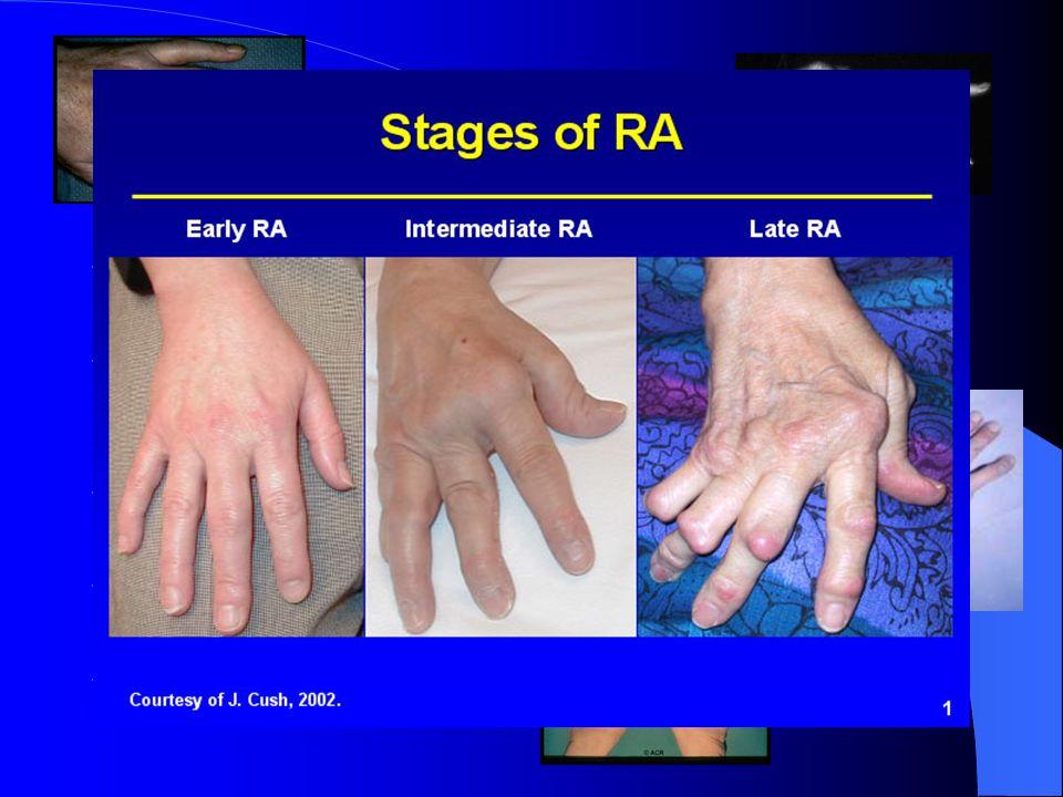 PR :Clinique - Arthralgie, arthrite, canal carpien - Déformation de profil en « dos de chameau » de la main - Déviation en « coup de vent » cubital -