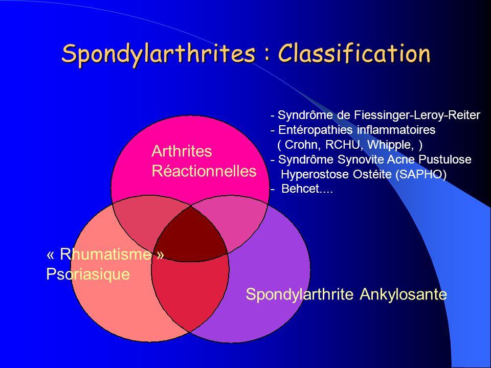 Spondylarthrites : Classification Spondylarthrite Ankylosante Arthrites Réactionnelles « Rhumatisme » Psoriasique - Syndrôme de Fiessinger-Leroy-Reite