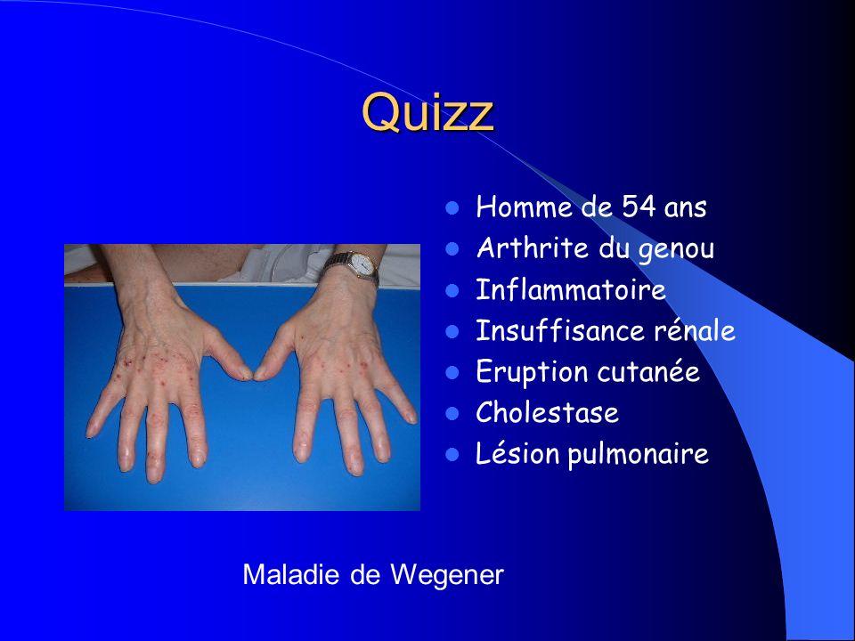 Quizz Homme de 54 ans Arthrite du genou Inflammatoire Insuffisance rénale Eruption cutanée Cholestase Lésion pulmonaire Maladie de Wegener
