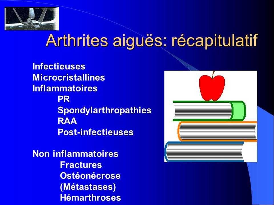 Arthrites aiguës: récapitulatif Infectieuses Microcristallines Inflammatoires PR Spondylarthropathies RAA Post-infectieuses Non inflammatoires Fractur