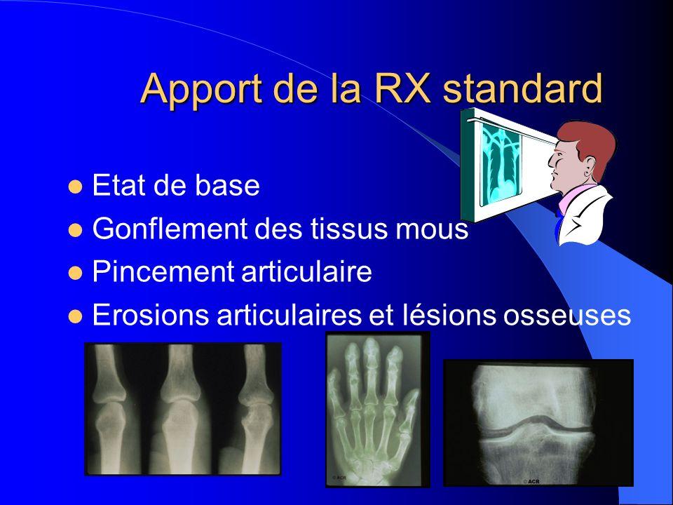 Apport de la RX standard Etat de base Gonflement des tissus mous Pincement articulaire Erosions articulaires et lésions osseuses