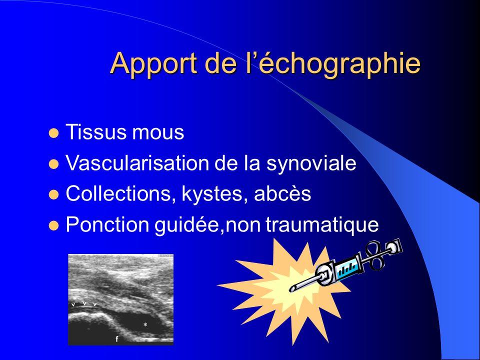 Apport de léchographie Tissus mous Vascularisation de la synoviale Collections, kystes, abcès Ponction guidée,non traumatique