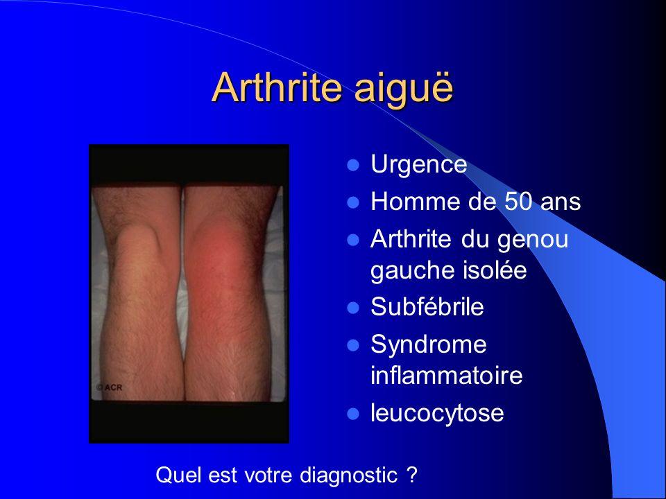 Arthrite aiguë Urgence Homme de 50 ans Arthrite du genou gauche isolée Subfébrile Syndrome inflammatoire leucocytose Quel est votre diagnostic ?