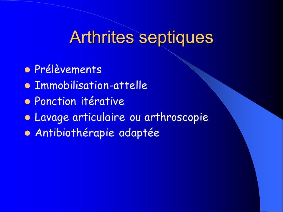 Arthrites septiques Prélèvements Immobilisation-attelle Ponction itérative Lavage articulaire ou arthroscopie Antibiothérapie adaptée