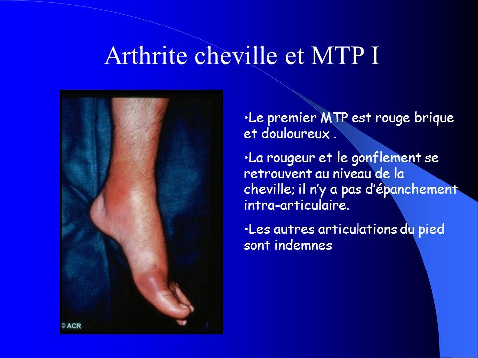 Le premier MTP est rouge brique et douloureux. La rougeur et le gonflement se retrouvent au niveau de la cheville; il ny a pas dépanchement intra-arti