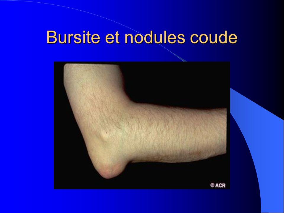Bursite et nodules coude