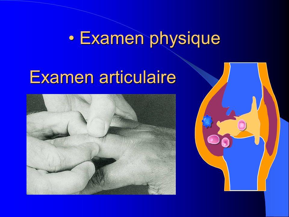 Examen physique Examen physique Examen articulaire