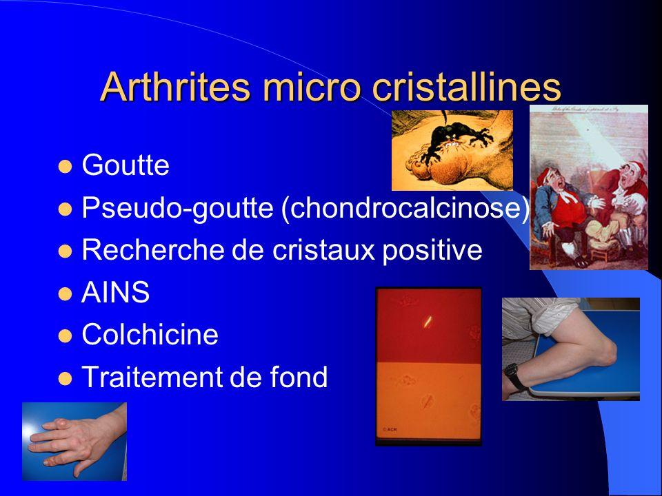 Arthrites micro cristallines Goutte Pseudo-goutte (chondrocalcinose) Recherche de cristaux positive AINS Colchicine Traitement de fond