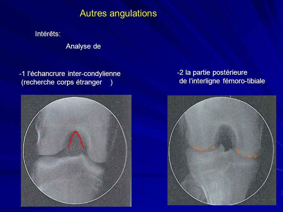 Intérêts: Analyse de Autres angulations -1 léchancrure inter-condylienne (recherche corps étranger ) -2 la partie postérieure de linterligne fémoro-ti