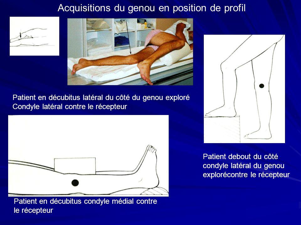 Acquisitions du genou en position de profil Patient en décubitus latéral du côté du genou exploré Condyle latéral contre le récepteur Patient debout d
