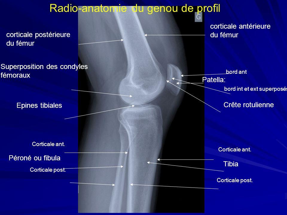 Radio-anatomie du genou de profil corticale antérieure du fémur corticale postérieure du fémur bord ant Patella: bord int et ext superposés Crête rotu