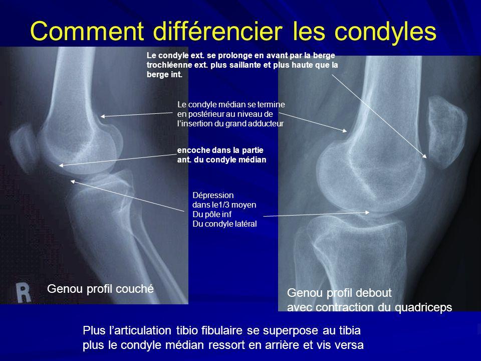Comment différencier les condyles Le condyle ext. se prolonge en avant par la berge trochléenne ext. plus saillante et plus haute que la berge int. Le