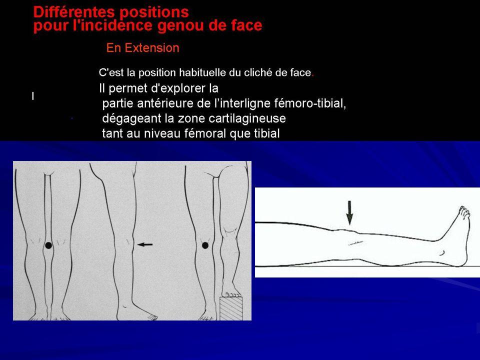 Radio-anatomie du genou de profil corticale antérieure du fémur corticale postérieure du fémur bord ant Patella: bord int et ext superposés Crête rotulienne Superposition des condyles fémoraux Tibia Péroné ou fibula Epines tibiales Corticale ant.