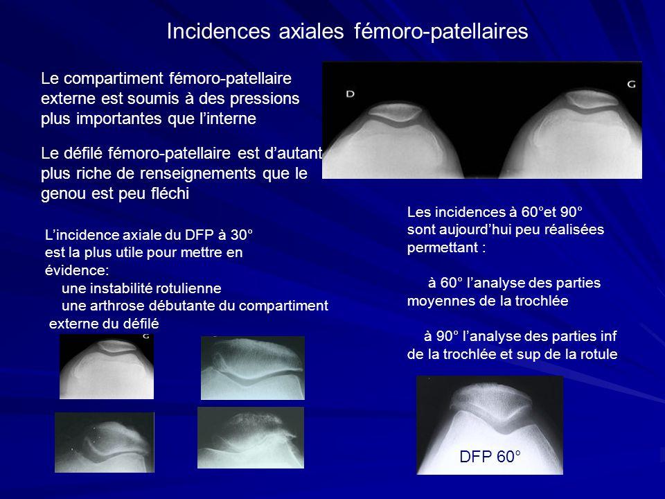 Incidences axiales fémoro-patellaires Le compartiment fémoro-patellaire externe est soumis à des pressions plus importantes que linterne Le défilé fém