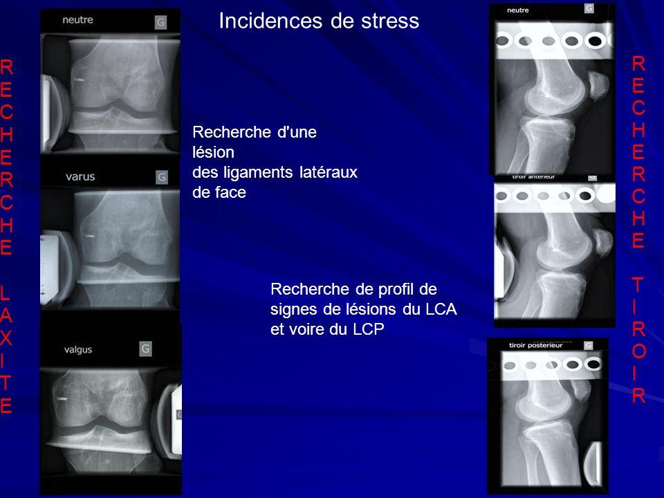 R E C H E R C H E L A X I T E R E C H E R C H E T I R O I R Incidences de stress Recherche d'une lésion des ligaments latéraux de face Recherche de pr
