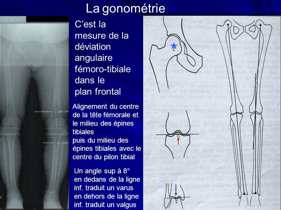 La gonométrie Cest la mesure de la déviation angulaire fémoro-tibiale dans le plan frontal Alignement du centre de la tête fémorale et le milieu des é