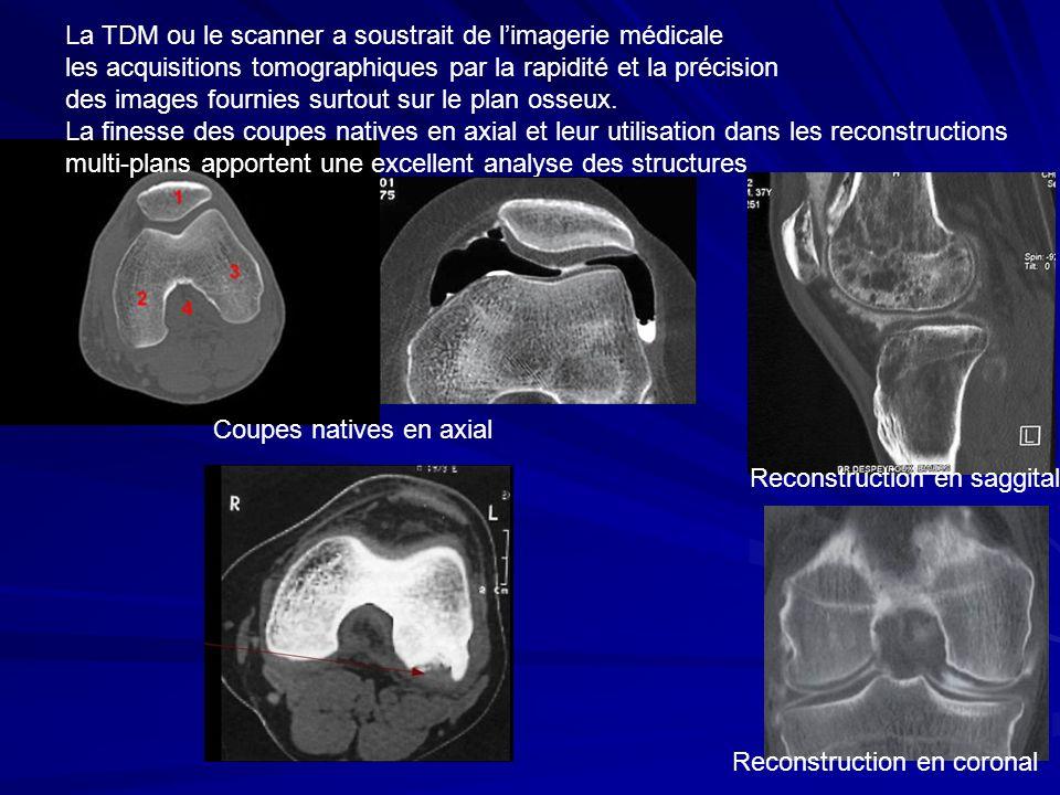 La TDM ou le scanner a soustrait de limagerie médicale les acquisitions tomographiques par la rapidité et la précision des images fournies surtout sur